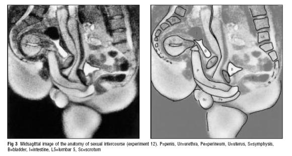 afb. saggitale doorsnede van een mannen en een vrouwenlichaam gedurende sexuele gemeenschap. P=penis, Ur=Urethra, Pe=perineum, S=symphysis, B=blaas, I=darmen, Sc=scrotum