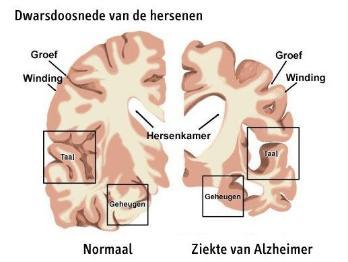 wat betekent alzheimer