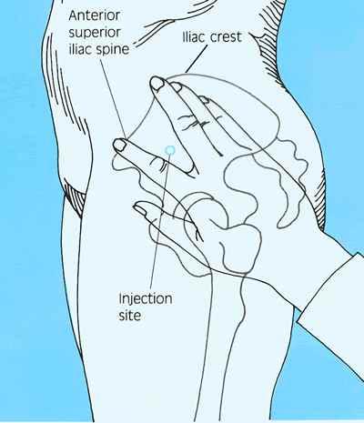 Plaatsbepaling VG-injectie